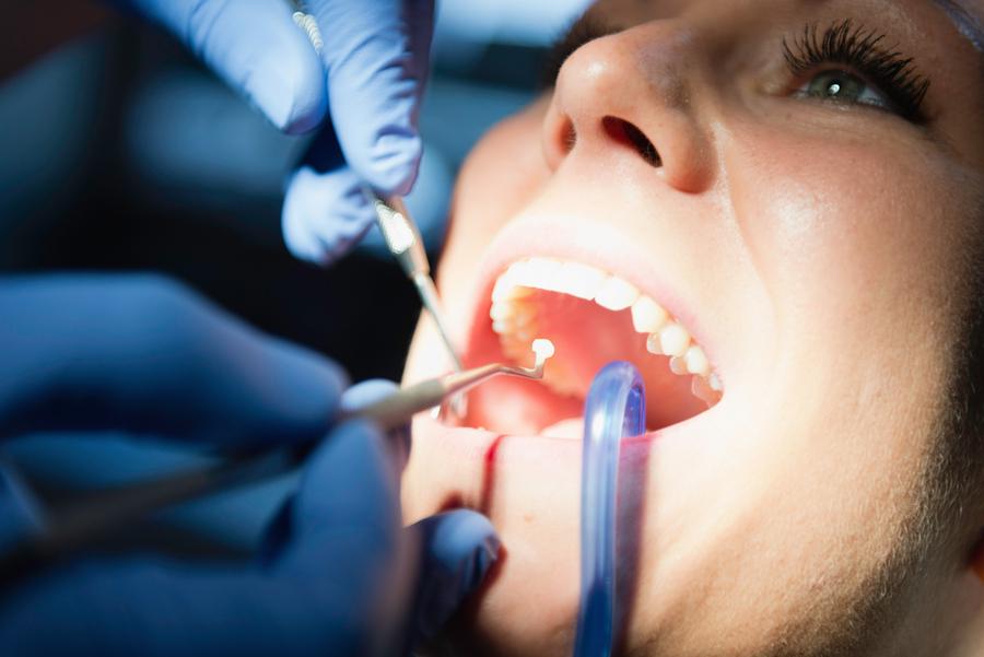 cremation dental fillings